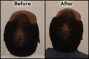 Images for Procerin Before and After